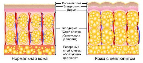 Половые женские гормоны и целлюлит